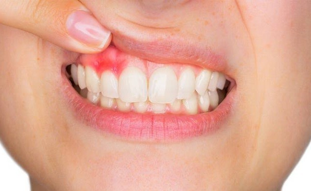 Mi okozhat fogínyvérzést?